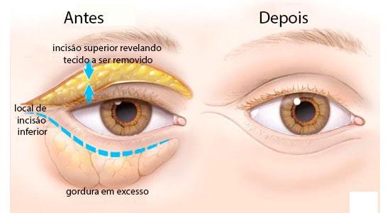 19d8f923a Cirurgia de Blefaroplastia, Clínica Cid Laser, Clínica Oftalmológica